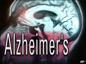 Alzheimer-kór tünetei