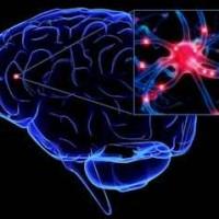sclerosis-multiplex
