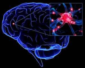 Demencia? Neuropathia? Sclerosis multiplex?